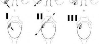 Fratture Cervicali